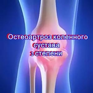 Может ли после инсульта остеоартроз коленного сустава можно ли продолжать тренировки при повреждении суставной губы