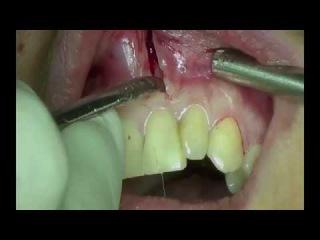 Apicoectomy via Hockey Stick Incision. MTA Retrograde Root Canal Filing
