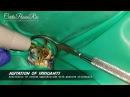 Endo Resto Treatment with a pulp tissue still exist in non vital tooth (spesialis konservasi gigi)