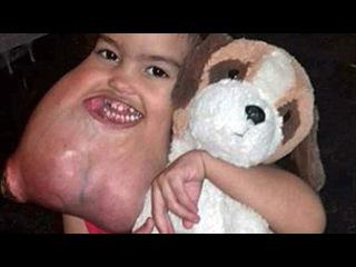 Surgeons Remove 3 Yr Old Girl's Giant Facial Tumor