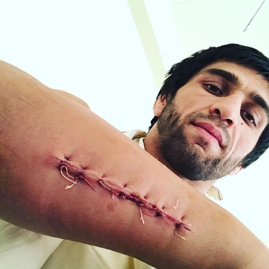 Магомед Мустафаев: «Операция прошла хорошо»