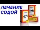 ЛЕЧЕНИЕ СОДОЙ Как правильно делать содовые ванны Николай Пейчев