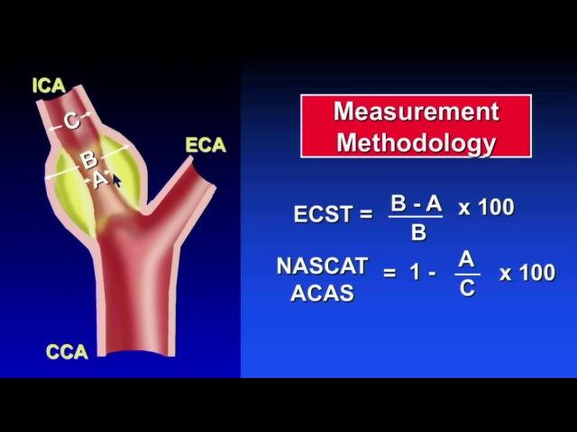 Neck Ultrasonography | Carotid Ultrasound Doppler