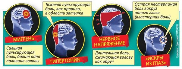 Как лечить головные боли от шейного остеохондроза