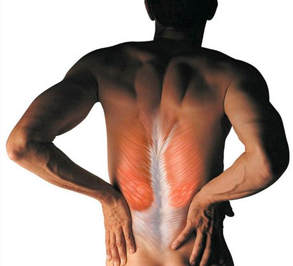 Мышечные спазмы при травме позвоночника