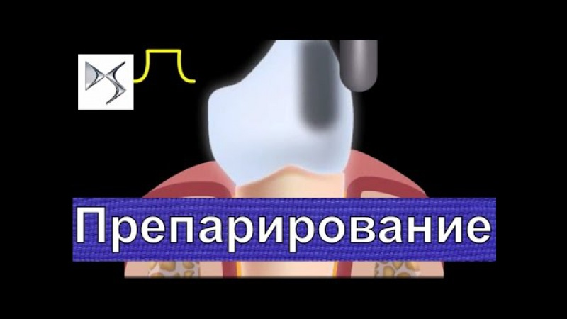 Препарирование зуба под металлокерамическую коронку Металлокерамика Ортопед ...
