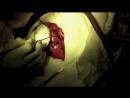 Операция Трепанация черепа Удаление опухоли головного мозга