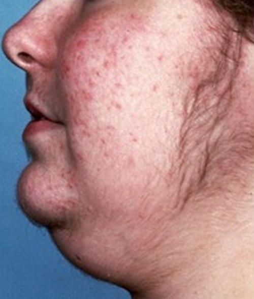 альфа блокаторы и ингибиторы для лечения аденомы