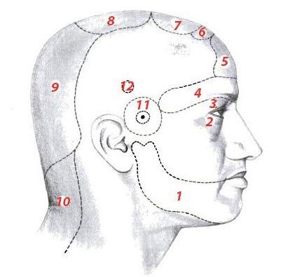 Участки постоянной головной боли