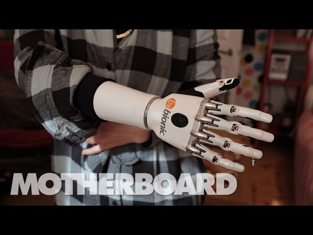 Living With Future Prosthetics