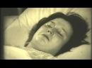 Острая шизофрения Голоса Параноидный синдром Лечение © Acute schizophrenia Paranoid syndrome
