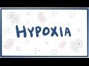 Hypoxia cellular injury causes symptoms diagnosis treatment pathology
