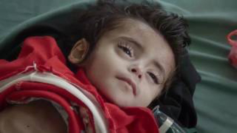 800 days of non stop war on Yemen. The damages which Saudi Arabia caused in Yemen is too ,