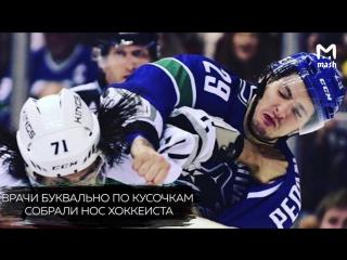 Хоккеисту Андрею Педану по кусочкам собирали нос