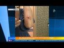 Эдгар Запашный о нападении верблюда на мужчину: животное не реагирует на запахи