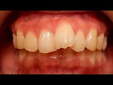 Orthodontic library ID. Dental crowding   Chart No.6630