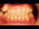 Orthodontic library ID. Opposite occlusion   Chart No.6291