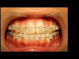 Orthodontic library ID. Dental crowding  Chart No.6399