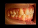 Orthodontic library ID. Dental crowding   Chart No.6441