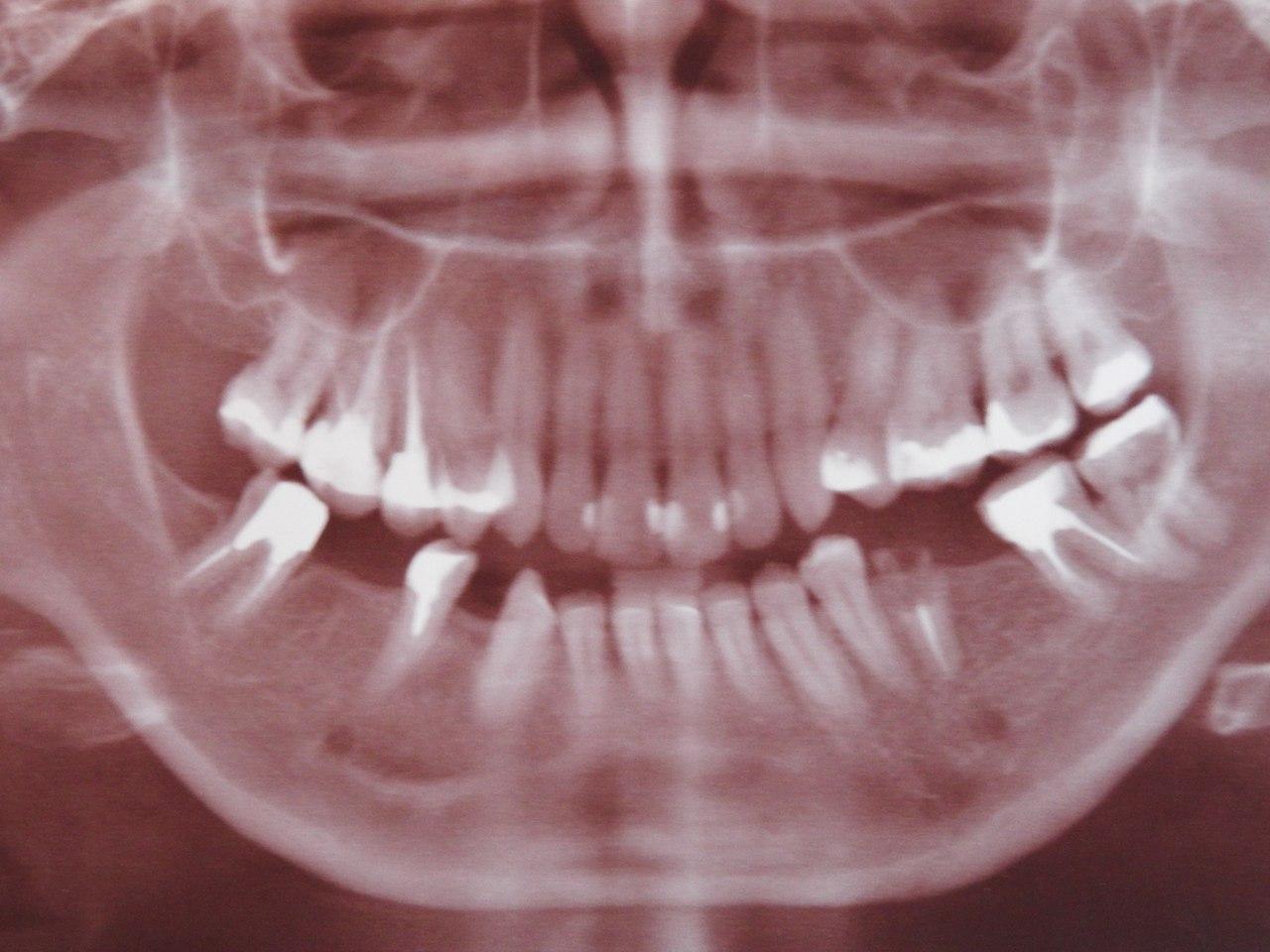 Когда можно есть после операции на зуб