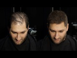 How to cut &amp disguise thinning hair MR. JAMIE STEVENS