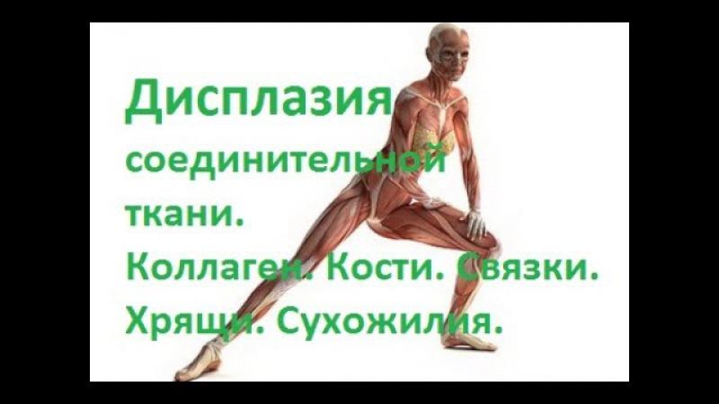 Дисплазия соединительной ткани Коллаген Кости Связки Хрящи Сухожилия