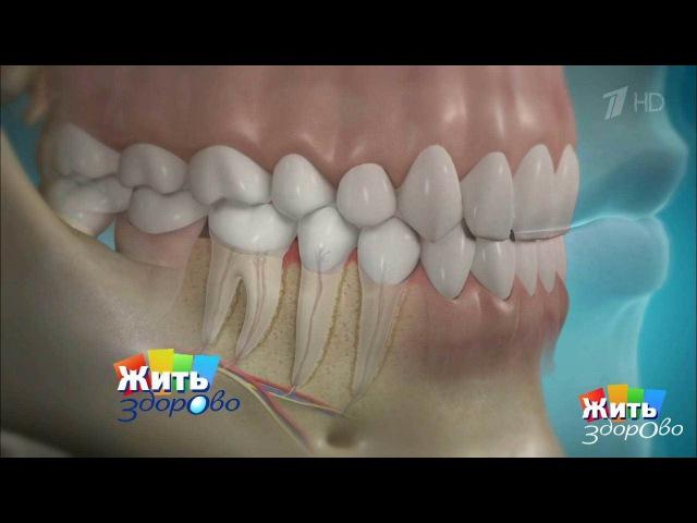 Жить здорово! Как нерастерять здоровые зубы. Пародонтит. (20.04.2017)