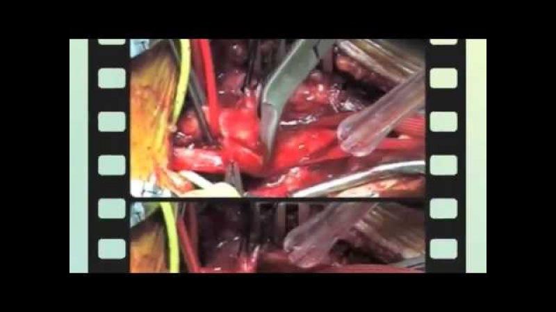 Операция - каротидная эндартерэктомия 2