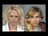 До и после приема наркотиков. Люди, погубившие свои жизни. Несколько минут кайфа ...