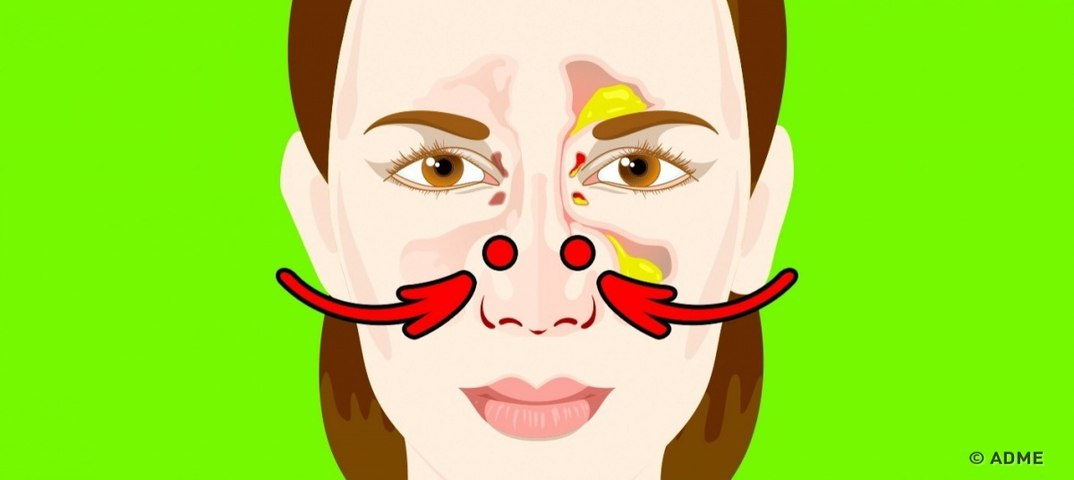 Быстро избавиться от заложенности носа в домашних условиях 229