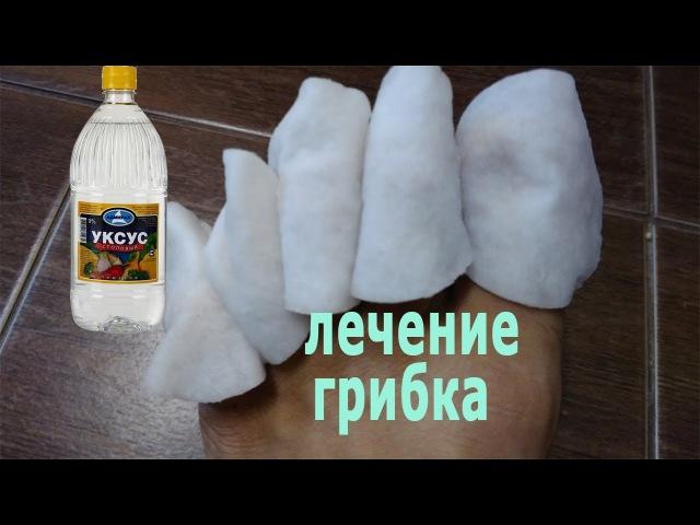 ★Лечение грибка ногтей УКСУСОМ. Видеоинструкция по лечению МИКОЗА.