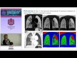 Н.А. Ильина - Дети и новорожденные: синдром одностороннего вздутия легких