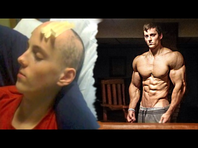 From Cancer To Aesthetics | Zach Zeiler Its Evolution | Fitness Motivation