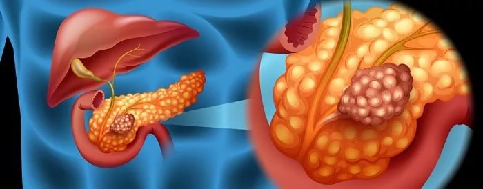 скрининга на рак поджелудочной железы