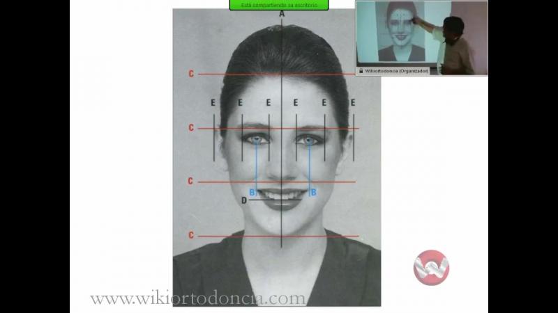 Diagnóstico clínico de las maloclusiones.Ортодонтия.