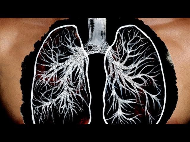 Хроническая обструктивная болезнь легких Школа здоровья 15 11 2014 GuberniaTV
