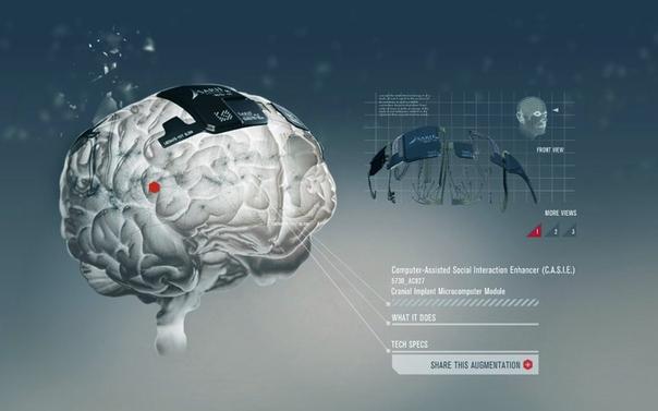 Картинки по запросу нейроимплант
