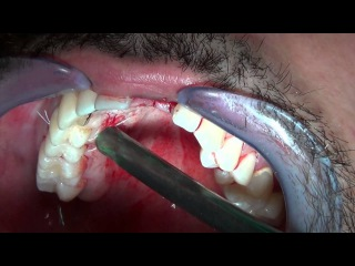Implant Placement with Connective Tissue Graft