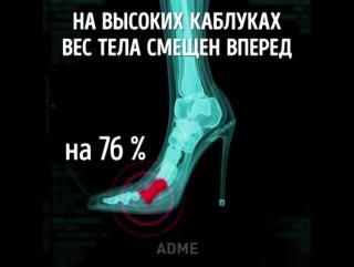 Чем опасны каблуки