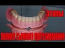 Полное съемное протезирование зубов. От начала до конца