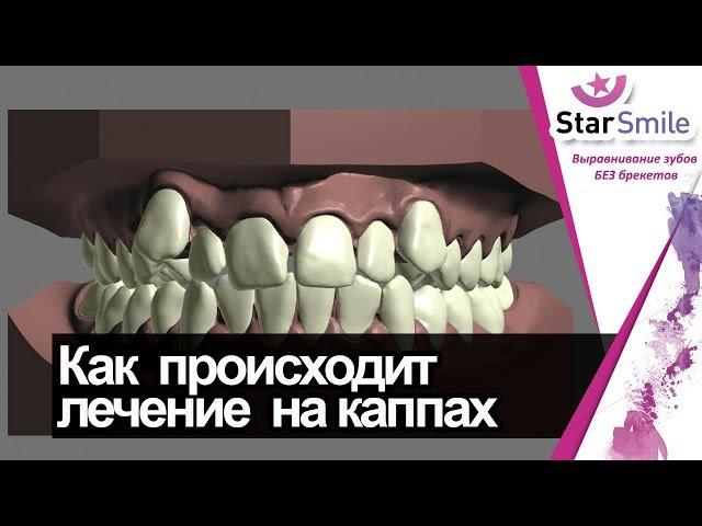 Скученность зубов. Как двигаются зубы при лечении на элайнерах Star Smile