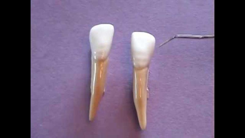 Mandibular Lateral Incisor Anatomy