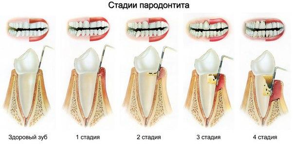 Если болят десны и шатаются зубы что делать