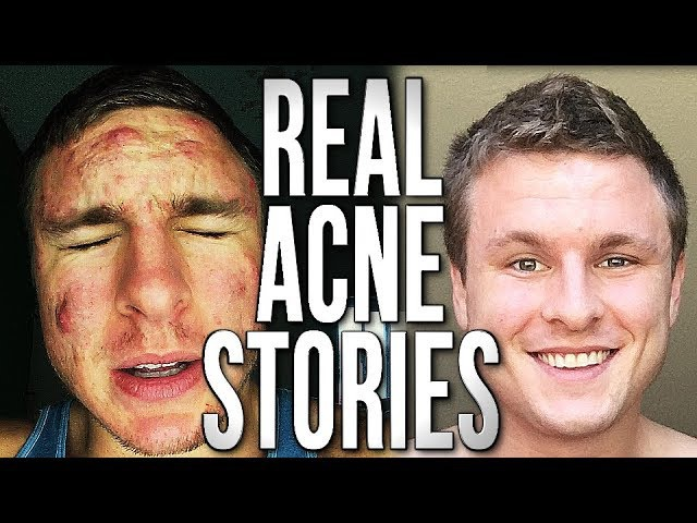 People's Severe Acne Stories | YOU'RE NOT ALONE