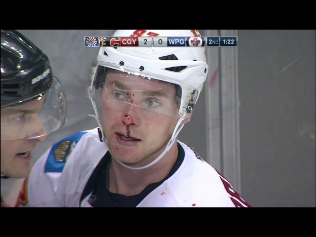 Gotta See It: Trouba, Bennett pick offence over defence in spirited fight