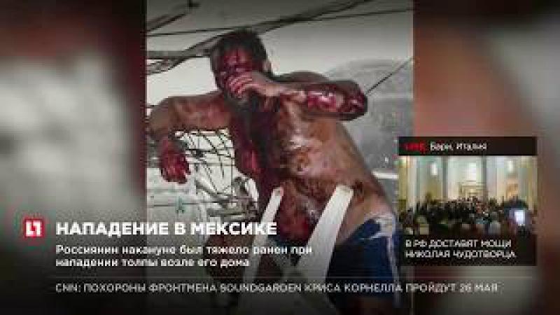 Раненый в Мексике россиянин Алексей Макеев находится в коме