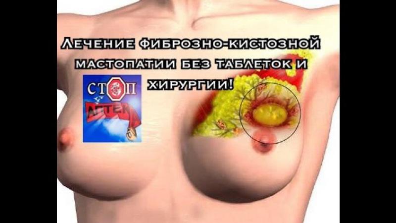Как вылечить рак груди, мастит, мастопатию без таблеток, химии и хирургии!