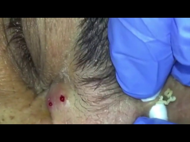 BEST OF Managing Ethnic skin Extractions Part 0