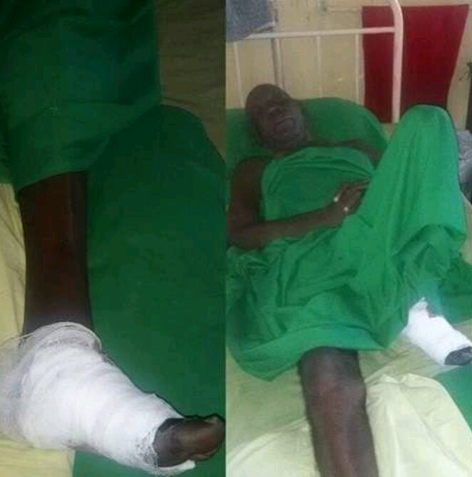 Nollywood actor after leg amputation turns out to be homeless