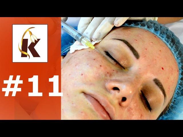 Биоревитализация лица гиалуроновой кислотой, уколы красоты.